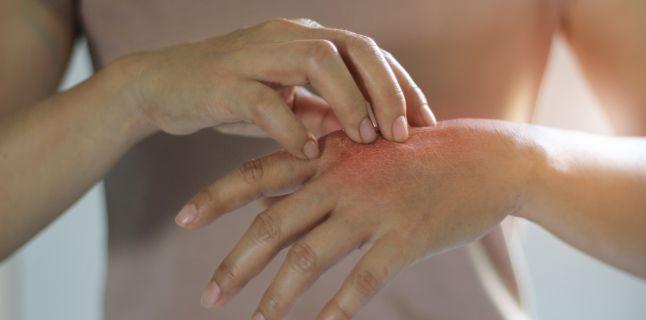 simptome de durere în articulațiile picioarelor și brațelor arsuri solare dureri articulare