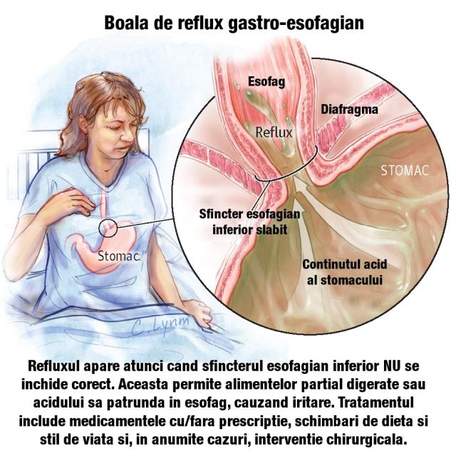 dureri articulare tratament articular recenzii ale ursului de balsam articular