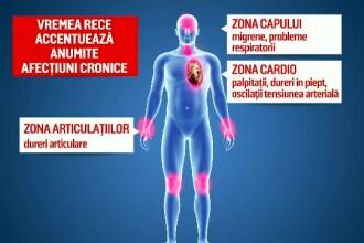 rata accidentelor articulare durere inghinală după o intervenție chirurgicală de înlocuire