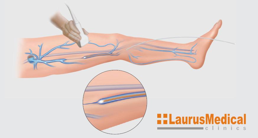 Terapie cu laser - graficata.ro