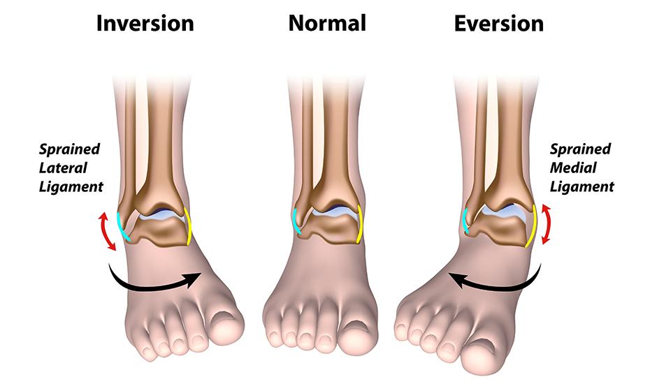 ce este tratamentul gonartrozei genunchiului cu entorsă la gleznă ce unguent