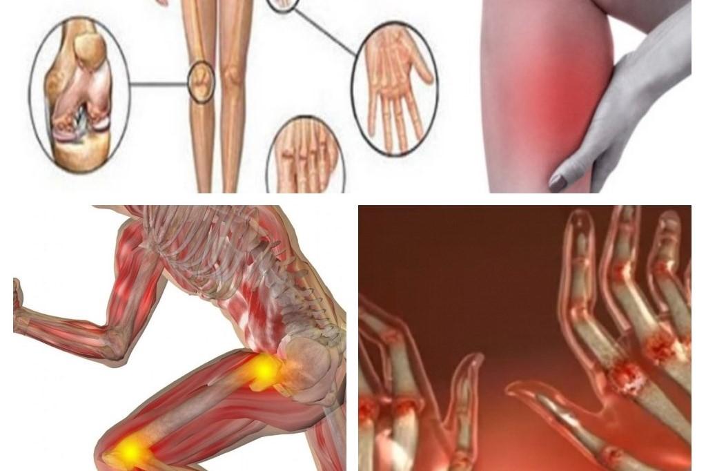 tratamentul sinovitei post-traumatice a genunchiului ce să faci dacă dureri articulare