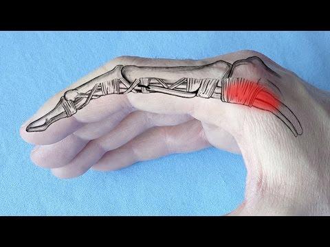 tratamentul articulațiilor din Issyk-Kul