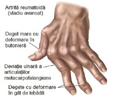 bile pentru dureri articulare articulațiile gleznei cu artrită reumatoidă