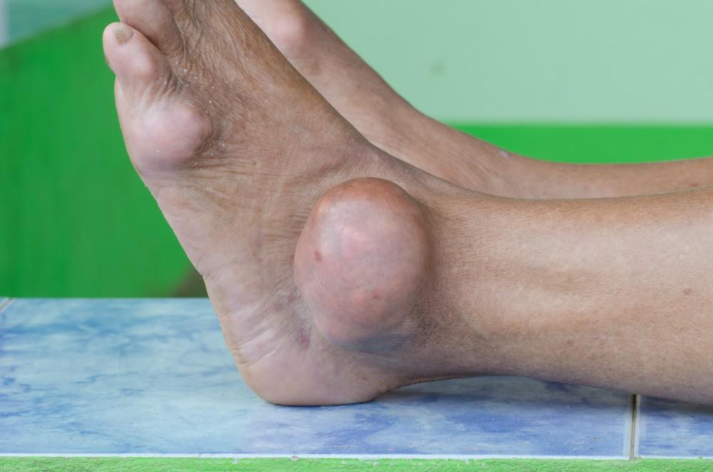 tratamentul artritei cu gută edem de țesut articular