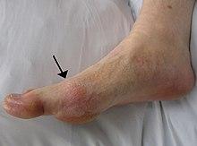 tratamentul artritei cu gută unguent anestezic pentru mușchi și articulații