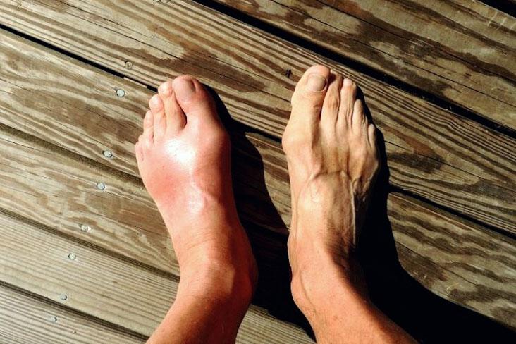 tratamentul artritei cu gută care este diagnosticul dacă doare articulația umărului