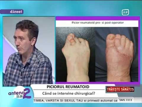 tratamentul artrozei articulației piciorului metatarsofangianului