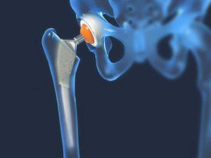 remedii de rigiditate articulară tratament comun cu recenzii diprospan