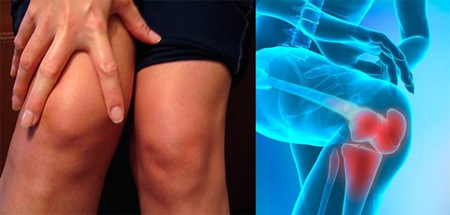 tratamentul artrozei genunchiului cu sare