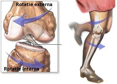 tratamentul rupturii ligamentului lateral al genunchiului complicații după o leziune la genunchi