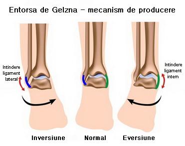 gel hial articular dureri articulare după febră mare