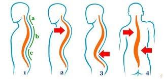 Tratarea coloanei vertebrale și a anastaziei articulațiilor semenova