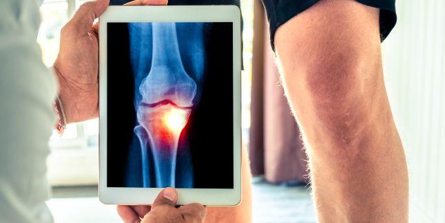 tratati genunchiul care sunt modalitatile