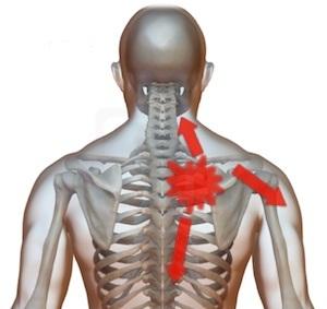 umăr stâng și omoplat în articulație unguent pentru durere în unghiurile articulației genunchiului