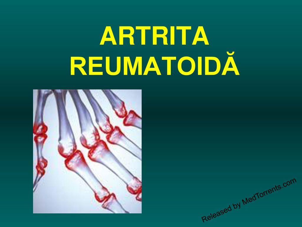 Poliartrita reumatoidă | Reumatologie | Ghid de boli