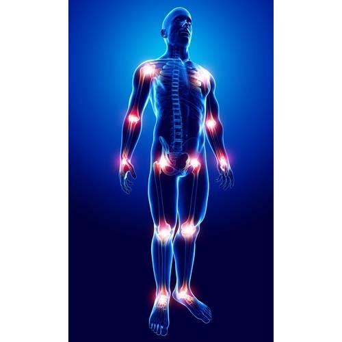 artroză și tratament extensiv