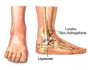 deteriorarea meniscului intern al genunchiului 2 grade