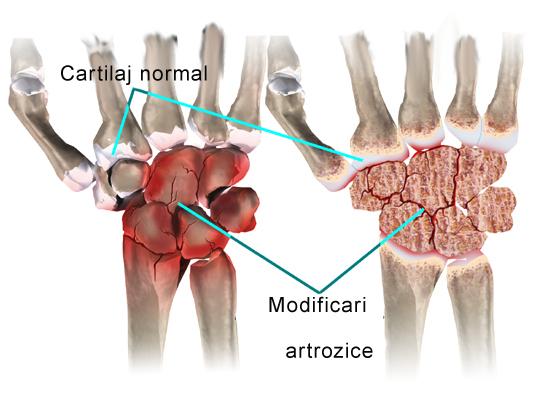 clorofilipt pentru dureri articulare insuficiență renală dureri articulare