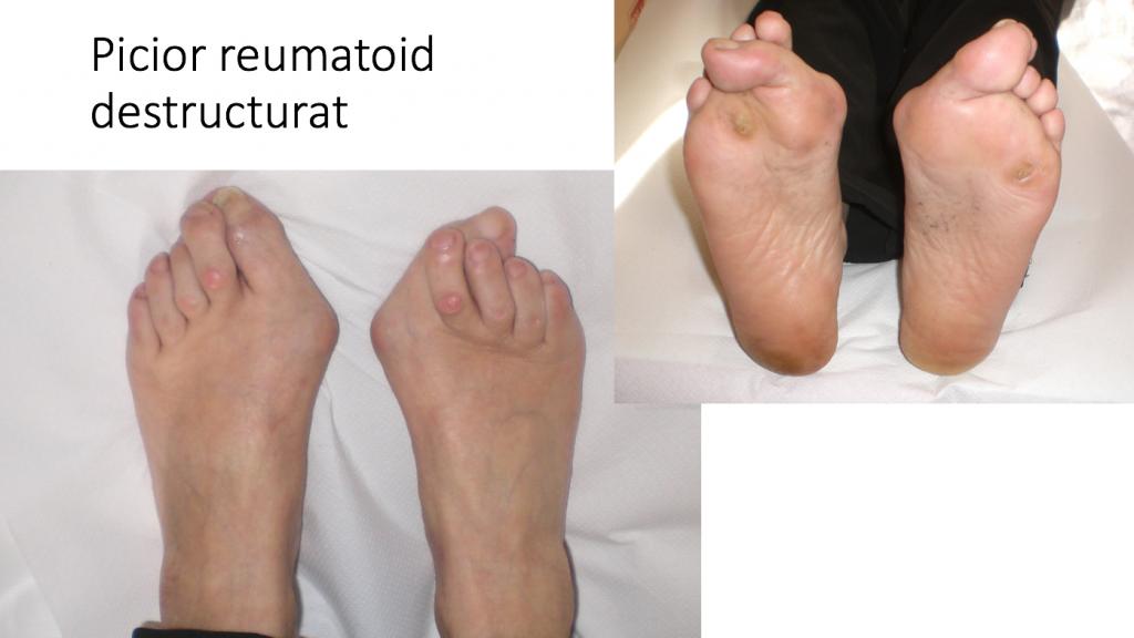 deformare articulară și durere