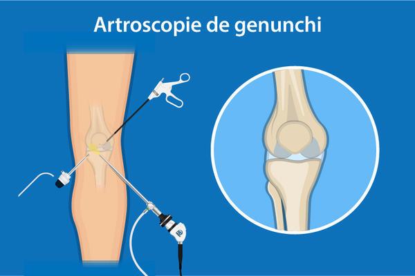 inflamația ligamentelor medicamentelor articulației genunchiului tratament cu artroză și nutriție