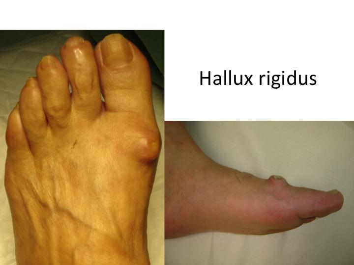 durere în articulațiile piciorului în timp ce mergeți