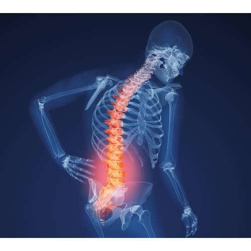 care sunt bolile oaselor și articulațiilor dacă nu tratați inflamația articulației