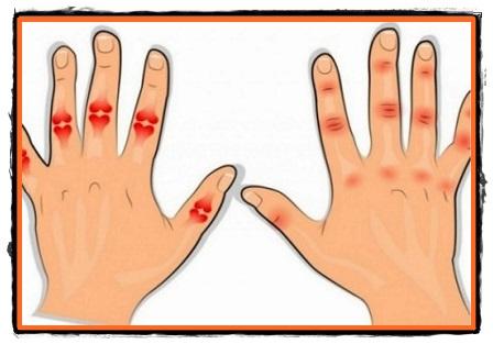 artroza articulațiilor interfalangiene ale mâinii de ce durează articulația brațului