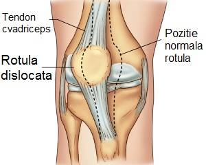 luxația meniscului tratamentului articulației genunchiului lista bolilor articulare
