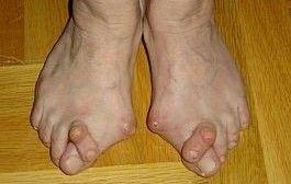 durere la nivelul piciorului și articulațiilor