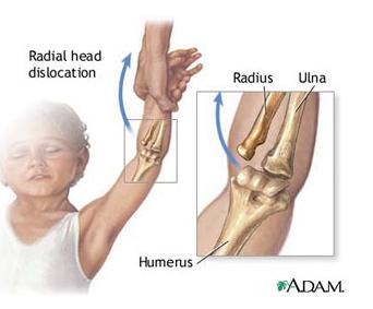 leziuni ale articulației cotului și a antebrațului tratamentul fracturilor articulației genunchiului