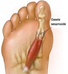 durere în degetul mare al piciorului drept