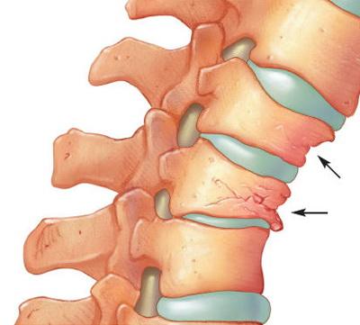 tratamentul articulației cotului cu unguente
