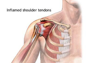 durere braț articulație umăr cum să se trateze