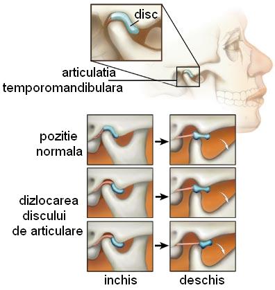 artrita urechi)