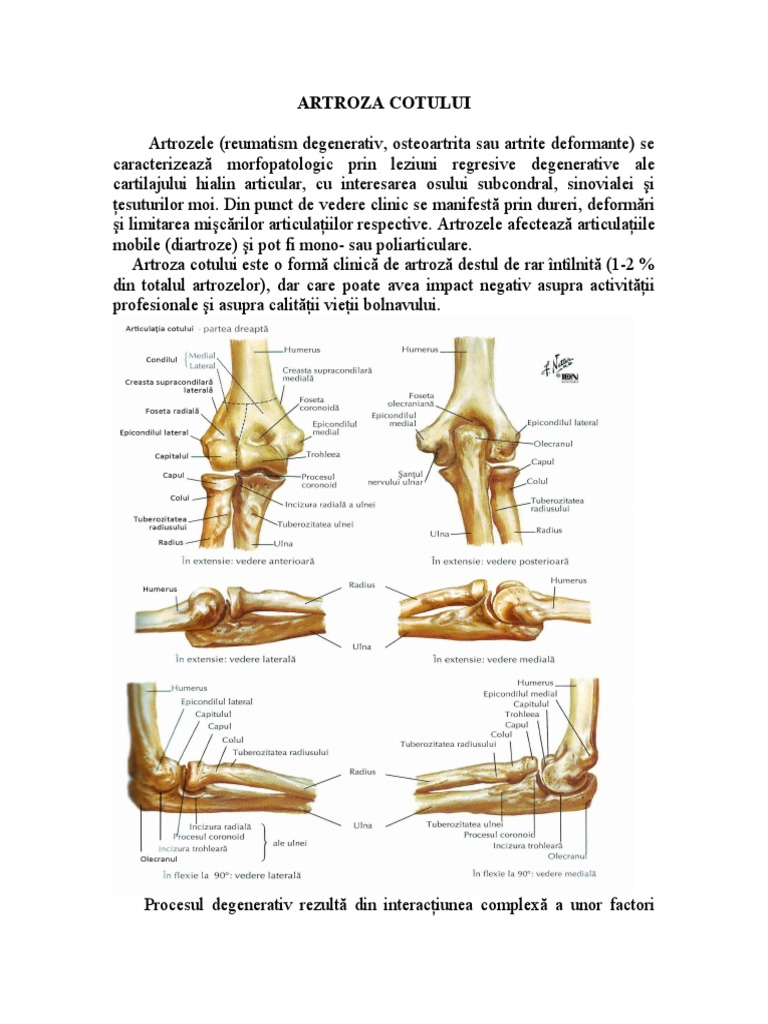 unguent pentru tratamentul osteoartritei genunchiului articulația cotului doare noaptea
