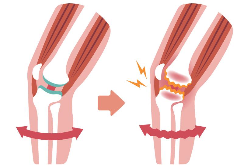 Tratamentul gonartrozei 3 grade ale tratamentului articulației genunchiului
