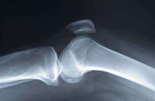 medicamente pentru tratamentul coxartrozei artrozei