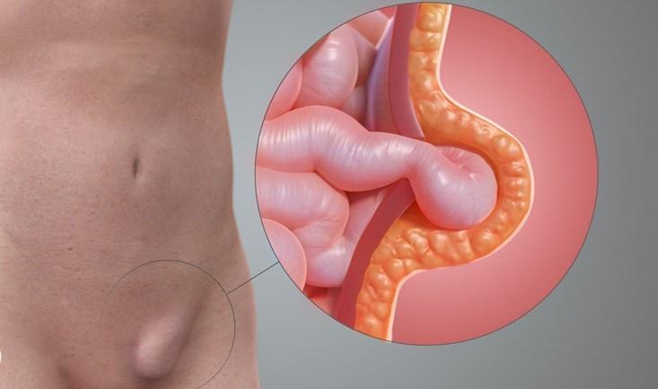 anemia dureri articulare osteoartroza articulației gleznei drepte, tratament de gradul I