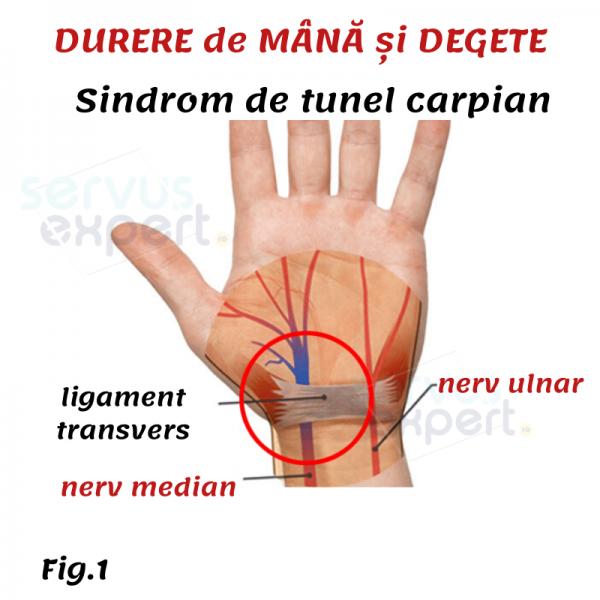Amorteala mainilor -simptome, cauze si tratament