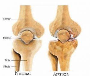 crize și durere în articulația umărului artrita articulațiilor consecințelor piciorului