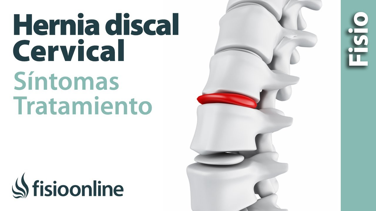 unguent sau gel pentru artroza genunchiului cum să tratezi articulația degetului arătător