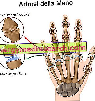 artroza nodulară a tratamentului mâinilor