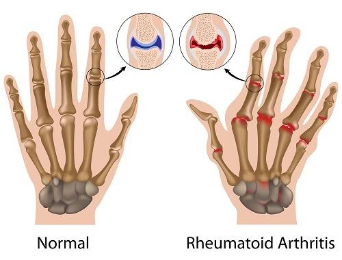 lumbago și durere în articulația genunchiului unguent ginseng pentru articulații