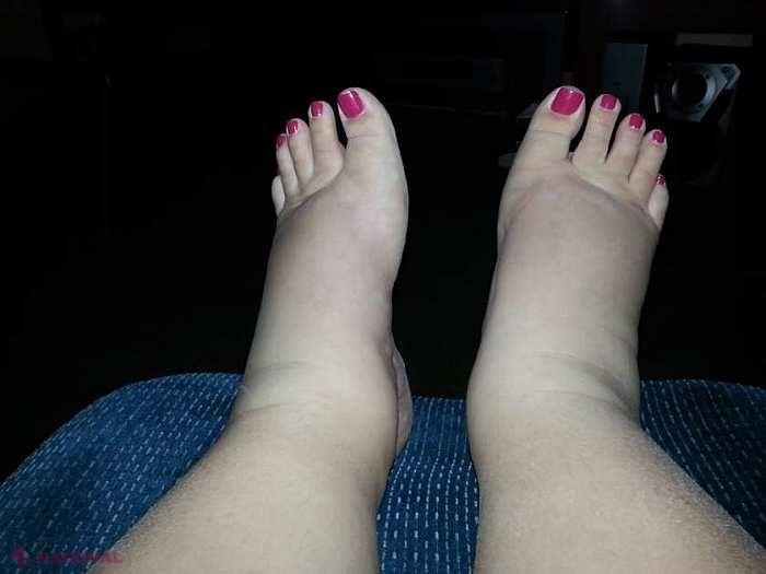 dar shpa de dureri articulare cum să aplici crema pe articulația genunchiului