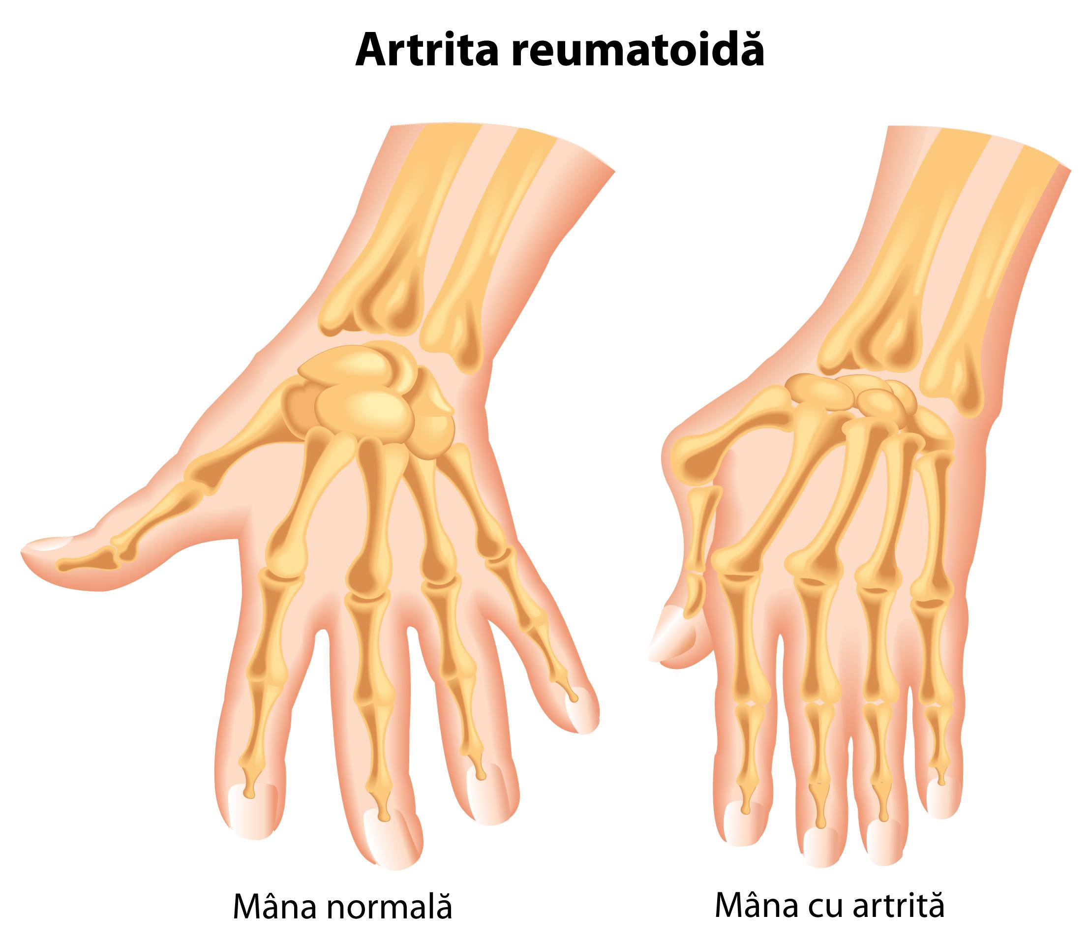 deformarea articulațiilor mâinilor în artrita reumatoidă