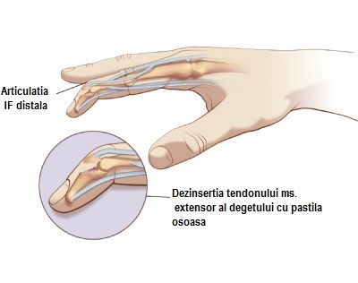 leziuni mici ale degetului în articulație glicozamină condroitină unguent preț farmacie