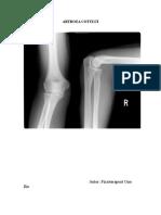 preparate articulare și osoase durere în articulațiile mari din dreapta