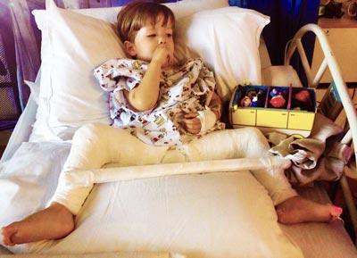 edemul picioarelor în boala articulară durere sub cupa genunchiului