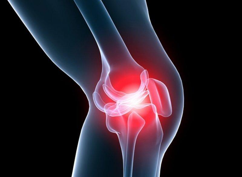 tratamentul artrozei genunchiului la domiciliu inflamația în articulațiile mâinii